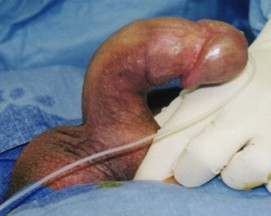Plaque removal surgerybefore