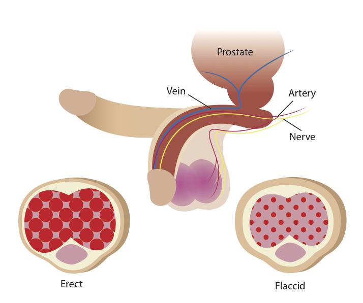 Простатит и эрекция по утрам кальцинаты признак простатита